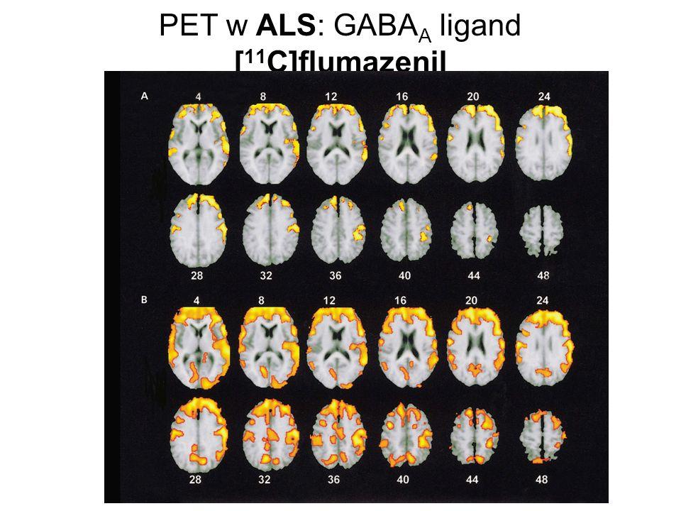 PET w ALS: GABAA ligand [11C]flumazenil